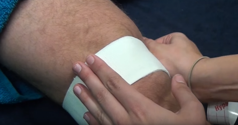 How to do a medial glide tape of the patellofemoral joint.