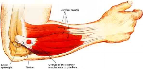 Muscles from the wrist, hand and finger all attach on the outside of the elbow. Repetitive pressure with movement of these muscles aggravate the tendon over time.