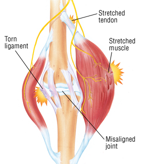 Tendon and Muscle Injuries.jpg