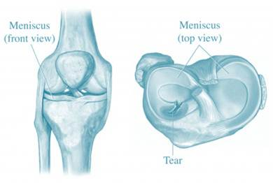 Suffering From A Meniscus Tear Why Arthroscopic Knee